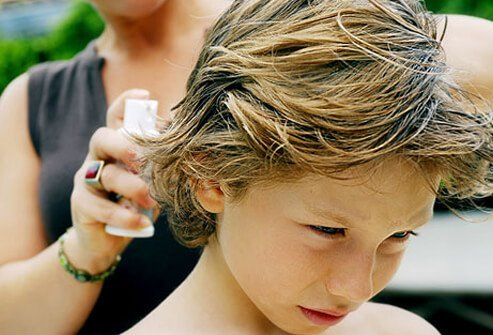 Photo of lice treatment.