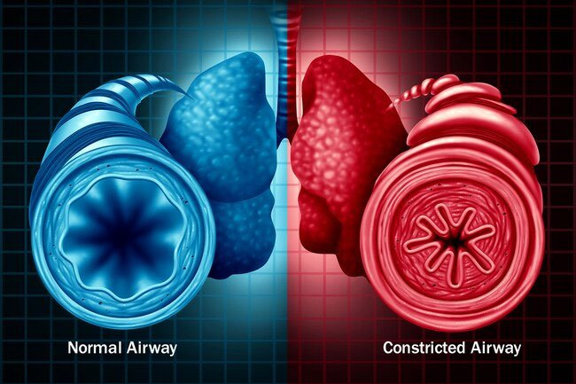 Air pollution may contribute to COPD.