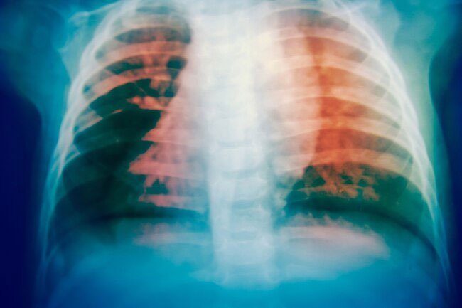 Children and the elderly are vulnerable to pneumonia due to exposure to air pollution.