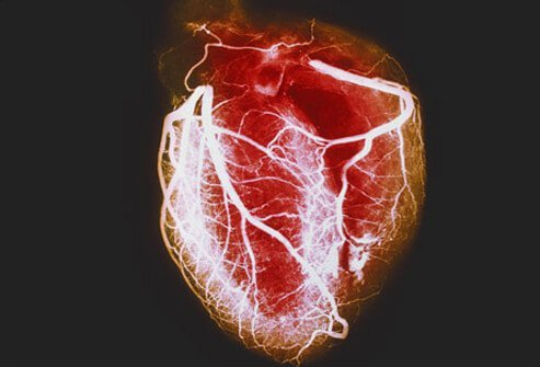 Coronary artery disease is a common type of heart disease and the leading cause of heart attacks.