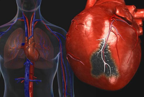 Awareness of heart attack causes and prevention helps save lives.