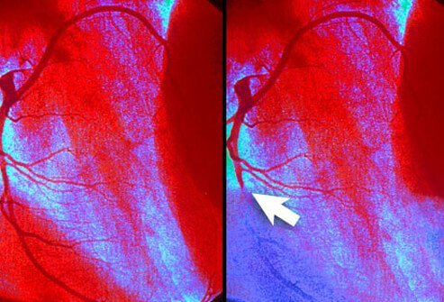 Reduced blood flow to the heart (Arrow) causes the telltale heart disease symptom, angina.