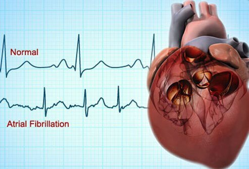 Arrhythmias are another type of heart disease that may increase the risk of a heart attack or stroke.