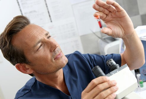 A doctor checks a blood test for hepatitis C (hep c).