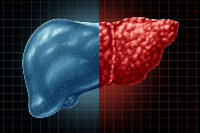 Some people with advanced hepatitis C infection and severe liver damage undergo a liver transplant, but that doesn't eradicate the infection.