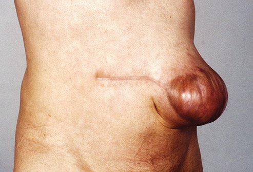 An incisional hernia happens in an area where you had surgery.