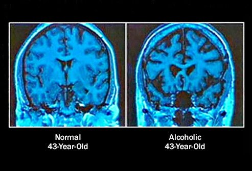 Chronic alcohol use may cause physical changes in the brain.