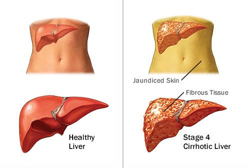 Heavy alcohol consumption damages the liver over time.