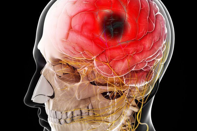 COVID-19 appears to cause problems with your nervous system as well, including seizures.