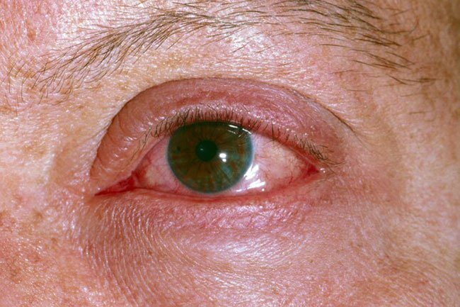 About a third of people in the hospital for COVID-19 get conjunctivitis, which you might know as pinkeye.