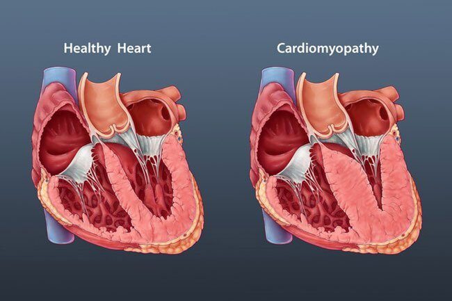 Doctors have noticed a number of heart issues in people with COVID-19, especially in those who are seriously ill.
