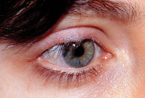 Eyelids may turn inward or outward as people age.