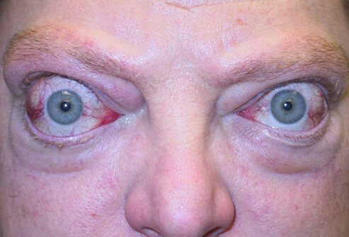 A patient with Graves' disease experiencing severe proptosis and eyelid retraction from thyroid-related orbitopathy.