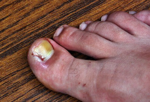 Ingrown toenails cause redness and swelling around the affected toe area.