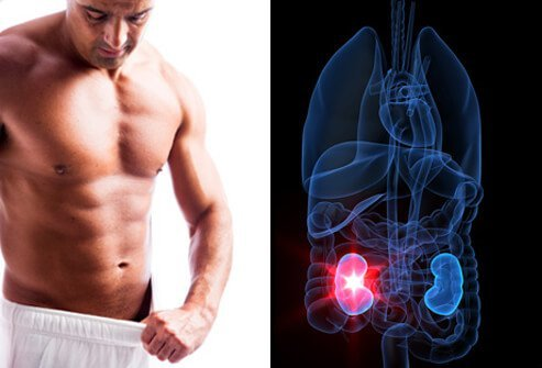 Hydronephrosis Causes Symptoms Treatment Surgery