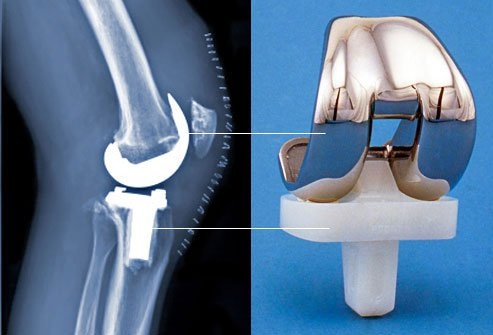Knee replacement usually takes 1 to 2 hours.