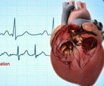 View the Atrial Fibrillation Slideshow