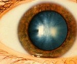 Cataracts:A Visual Guide to Causes, Symptoms and Surgery