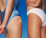 View Cellulite Slideshow Pictures