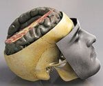 View Concussions & Brain Injuries Slideshow