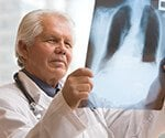 Chest Pain Pictures Slideshow: What is Costochondritis?