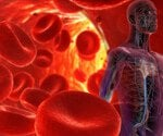 View the High Blood Pressure (Hypertension) Slideshow Pictures