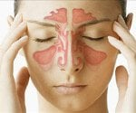Causes of Sinusitis (A Sinus Infection)