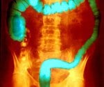 View the Ulcerative Colitis Slideshow Pictures