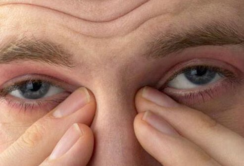 A man rubbing his irritated eyes.