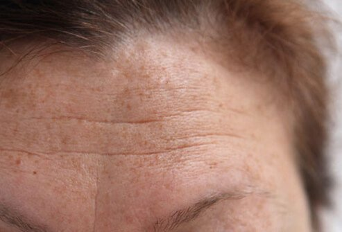 Retinoids combat fine lines and wrinkles.