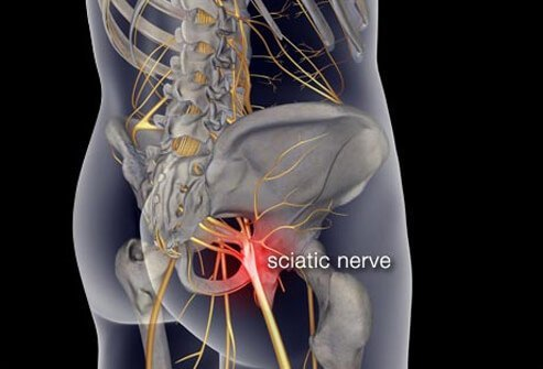 Illustration of the sciatic nerve.
