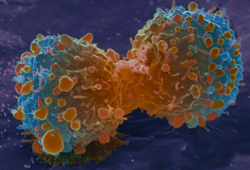Lung cancer cell division.