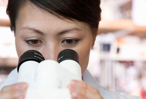 A woman looking at lung cancer through a microscope.