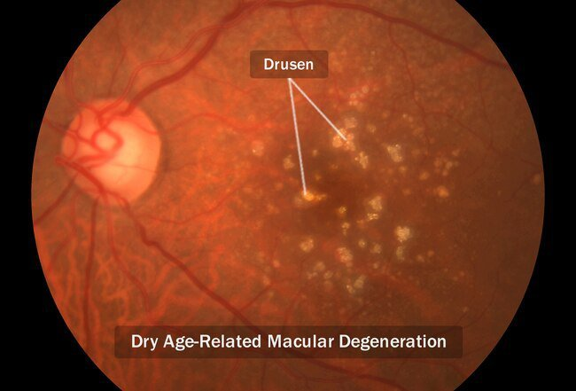 Wet and dry are the two types of macular degeneration.