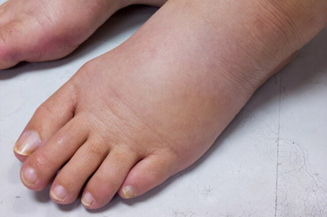 Edema is a condition where you retain water weight.