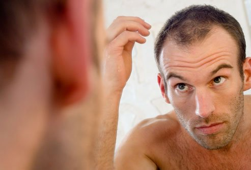 The majority of men experience hair thinning by 50.