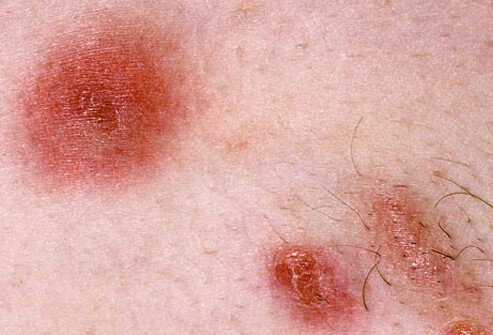 Picture of Symptoms of a MRSA Skin Infection