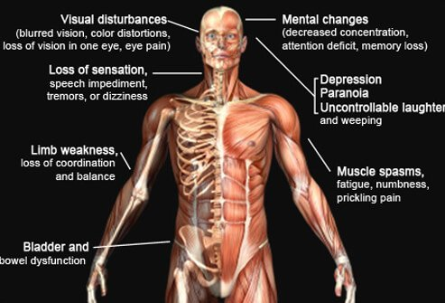 external image multiple-sclerosis-s11-ms-symptoms.jpg