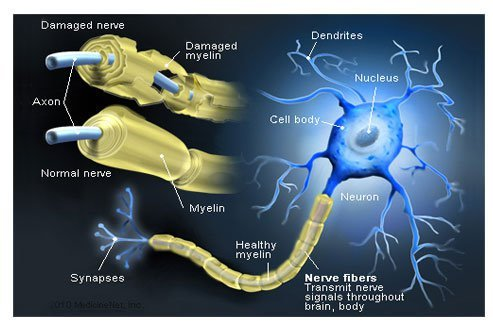 Picture of Nerve Fibers and Myelin Attack in MS