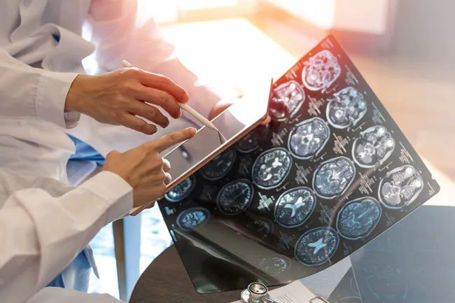 Muscle weakness may be a sign of multiple sclerosis.