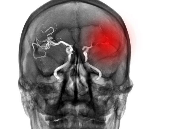 Sudden muscle weakness may be a sign of a stroke.