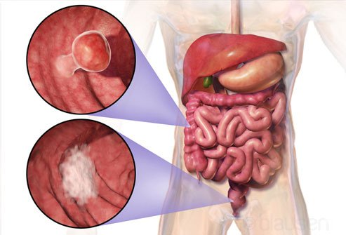 Chronic constipation does not lead to colon cancer.