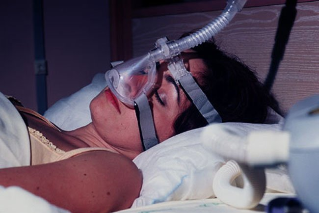 The most common treatment for obstructive sleep apnea is a CPAP machine.