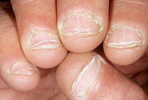 Example of gnawed fingernails.