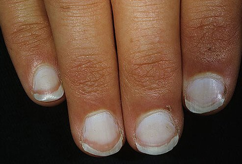 Although Terry's nail may suggest a serious condition, it can also appear in seniors as a normal part of aging.