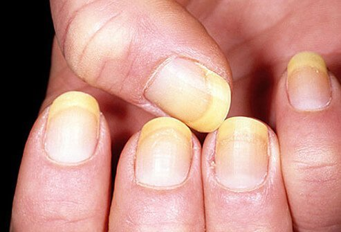 Example of yellow nails.