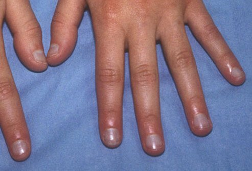 Example of blue-tinted nails.