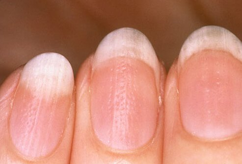 Example of rippled nails.