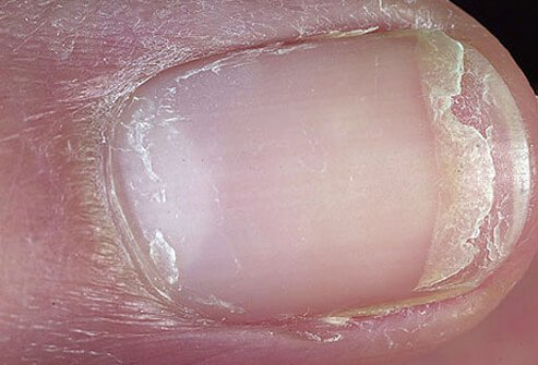 It may be difficult to treat your nails by the time they begin splitting and cracking.