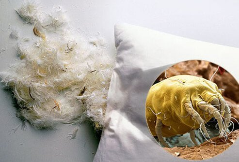 You can avoid some allergy attacks if you keep dust mites out of your mattresses and pillows.